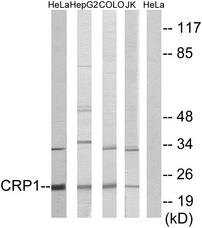 Western blot analysis of lysates from HeLa, HepG2, COLO, and Jurkat cells, using CRP1 Antibody. The lane on the right is blocked with the synthesized peptide.