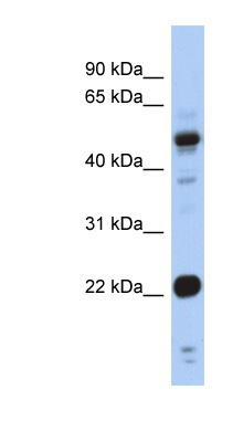 CSRP1 antibody LS-C109906 Western blot of Fetal Stomach lysate.  This image was taken for the unconjugated form of this product. Other forms have not been tested.