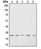 Western blot analysis of CSRP1 expression in Jurkat (A); HeLa (B); PC3 (C); DU145 (D); A10 (E) whole cell lysates.
