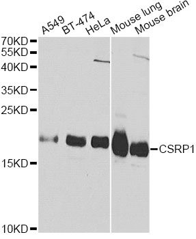 Western blot analysis of extracts of various cell lines, using CSRP1 antibody at 1:1000 dilution. The secondary antibody used was an HRP Goat Anti-Rabbit IgG (H+L) at 1:10000 dilution. Lysates were loaded 25ug per lane and 3% nonfat dry milk in TBST was used for blocking. An ECL Kit was used for detection.