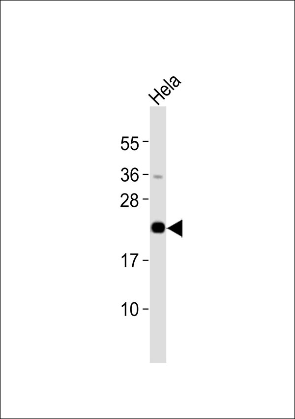Anti-CSRP1 Antibody at 1:4000 dilution + HeLa whole cell lysates Lysates/proteins at 20 ug per lane. Secondary Goat Anti-Rabbit IgG, (H+L),Peroxidase conjugated at 1/10000 dilution Predicted band size : 21 kDa Blocking/Dilution buffer: 5% NFDM/TBST.