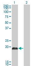 Western Blot analysis of CSRP3 expression in transfected 293T cell line by CSRP3 monoclonal antibody (M03), clone 6D2.Lane 1: CSRP3 transfected lysate(20.969 KDa).Lane 2: Non-transfected lysate.