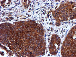 IHC of paraffin-embedded Carcinoma of Human lung tissue using anti-CST3 mouse monoclonal antibody.