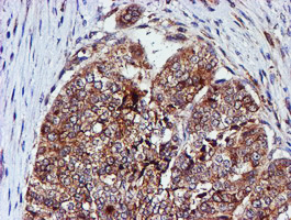 IHC of paraffin-embedded Adenocarcinoma of Human ovary tissue using anti-CST3 mouse monoclonal antibody.
