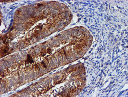 IHC of paraffin-embedded Adenocarcinoma of Human endometrium tissue using anti-CST3 mouse monoclonal antibody.
