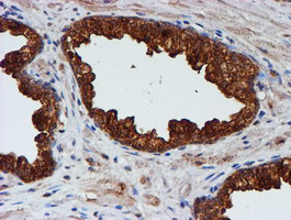 IHC of paraffin-embedded Carcinoma of Human prostate tissue using anti-CST3 mouse monoclonal antibody.