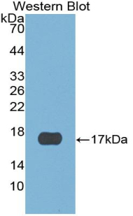 Western blot of recombinant CST6.