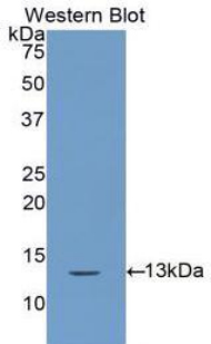 Western blot of recombinant CSTA / Cystatin A.  This image was taken for the unconjugated form of this product. Other forms have not been tested.