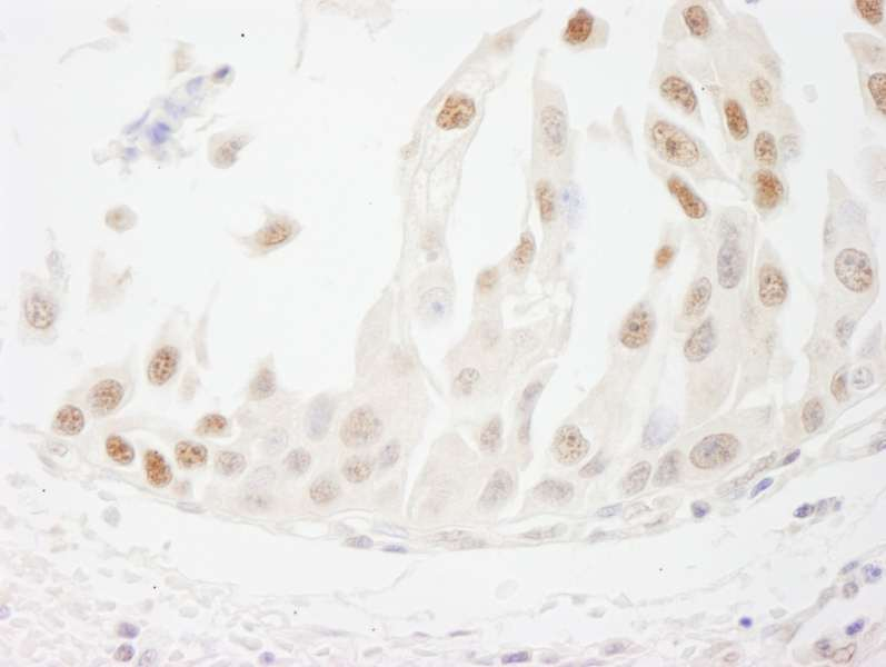 Detection of Human CSTF50 by Immunohistochemistry. Sample: FFPE section of human bladder cell carcinoma. Antibody: Affinity purified rabbit anti-CSTF50 used at a dilution of 1:1000 (1 ug/ml). Detection: DAB.