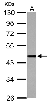 Sample (30 ug of whole cell lysate) A: Jurkat 10% SDS PAGE CSTF1 antibody diluted at 1:1000