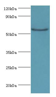 Western blot. All lanes: CSTF2 antibody at 6 ug/ml+Jurkat whole cell lysate. Secondary antibody: Goat polyclonal to rabbit at 1:10000 dilution. Predicted band size: 61 kDa. Observed band size: 61 kDa Immunohistochemistry.