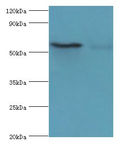 Western blot. All lanes: CSTF2 antibody at 6 ug/ml. Lane 1: HeLa whole cell lysate. Lane 2: Jurkat whole cell lysate. Secondary antibody: Goat polyclonal to rabbit at 1:10000 dilution. Predicted band size: 61 kDa. Observed band size: 61 kDa Immunohistochemistry.