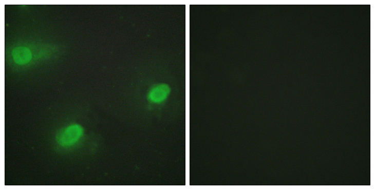 Immunofluorescence analysis of HeLa cells, using CSTF2 Antibody. The picture on the right is blocked with the synthesized peptide.