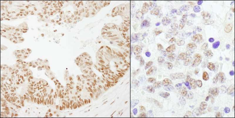 Detection of Human and Mouse CSTF64 by Immunohistochemistry. Sample: FFPE section of human ovarian carcinoma (left) and mouse teratoma (right). Antibody: Affinity purified rabbit anti-CSTF64 used at a dilution of 1:1000 (1 ug/ml). Detection: DAB.