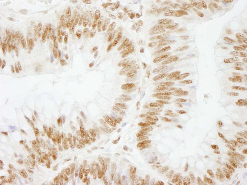 Detection of Human CSTF64 by Immunohistochemistry. Sample: FFPE section of human colon adenocarcinoma. Antibody: Affinity purified rabbit anti-CSTF64 used at a dilution of 1:250.