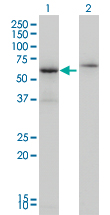 Western blot of CSTF2 expression in transfected 293T cell line by CSTF2 monoclonal antibody (M01), clone 3D1-3A6.