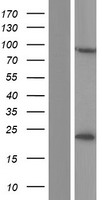 CSTF3 Protein - Western validation with an anti-DDK antibody * L: Control HEK293 lysate R: Over-expression lysate