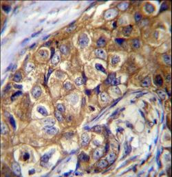 CTAGE5 Antibody immunohistochemistry of formalin-fixed and paraffin-embedded human breast carcinoma followed by peroxidase-conjugated secondary antibody and DAB staining.