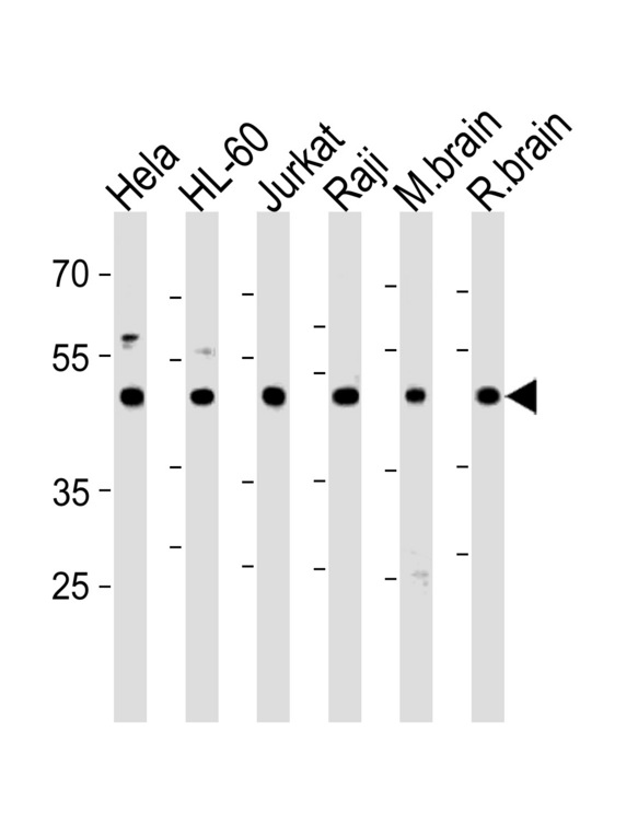 CTBP1 / CTBP Antibody - CTBP1 Antibody western blot of HeLa,HL-60,Jurkat,Raji cell line and mouse brain,rat brain tissue lysates (35 ug/lane). The CTBP1 antibody detected the CTBP1 protein (arrow).