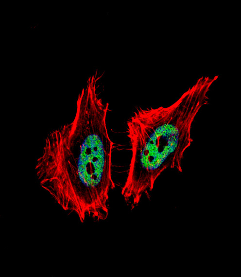 CTBP1 / CTBP Antibody - Fluorescent confocal image of HeLa cell stained with CTBP1 Antibody. HeLa cells were fixed with 4% PFA (20 min), permeabilized with Triton X-100 (0.1%, 10 min), then incubated with CTBP1 primary antibody (1:25, 1 h at 37°C). For secondary antibody, Alexa Fluor 488 conjugated donkey anti-rabbit antibody (green) was used (1:400, 50 min at 37°C). Cytoplasmic actin was counterstained with Alexa Fluor 555 (red) conjugated Phalloidin (7units/ml, 1 h at 37°C). Nuclei were counterstained with DAPI (blue) (10 ug/ml, 10 min). CTBP1 immunoreactivity is localized to nucleus significantly.