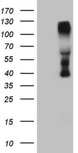 CTBP2 Antibody - HEK293T cells were transfected with the pCMV6-ENTRY control. (Left lane) or pCMV6-ENTRY CTBP2. (Right lane) cDNA for 48 hrs and lysed. Equivalent amounts of cell lysates. (5 ug per lane) were separated by SDS-PAGE and immunoblotted with anti-CTBP2. (1:500)