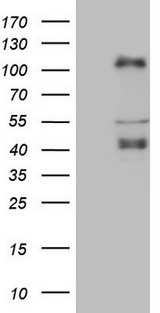CTBP2 Antibody - HEK293T cells were transfected with the pCMV6-ENTRY control. (Left lane) or pCMV6-ENTRY CTBP2. (Right lane) cDNA for 48 hrs and lysed. Equivalent amounts of cell lysates. (5 ug per lane) were separated by SDS-PAGE and immunoblotted with anti-CTBP2. (1:2000)