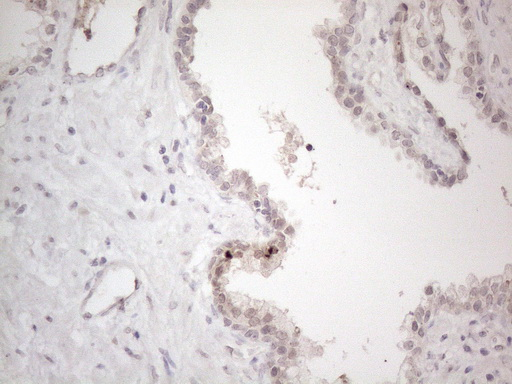 CTBP2 Antibody - Immunohistochemical staining of paraffin-embedded Carcinoma of Human prostate tissue using anti-CTBP2 mouse monoclonal antibody. (Heat-induced epitope retrieval by 1mM EDTA in 10mM Tris buffer. (pH8.5) at 120°C for 3 min. (1:150)