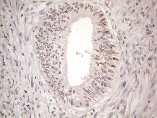 CTBP2 Antibody - Immunohistochemical staining of paraffin-embedded Adenocarcinoma of Human colon tissue using anti-CTBP2 mouse monoclonal antibody. (Heat-induced epitope retrieval by 1mM EDTA in 10mM Tris buffer. (pH8.5) at 120°C for 3 min. (1:150)