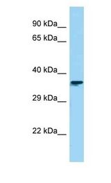 CTBS / CTB Antibody - CTBS / CTB antibody Western Blot of HepG2. Antibody dilution: 1 ug/ml.  This image was taken for the unconjugated form of this product. Other forms have not been tested.