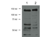 Western Blot of rabbit Anti-CTCF antibody. Lane 1: P3XAg nuclear lysate. Lane 2: Flag-CTCF. Load: 30 µg per lane. Primary antibody: CTCF antibody at 1:1000 for overnight at 4°C. Secondary antibody: rabbit secondary antibody at 1:10,000 for 45 min at RT. Block: 5% BLOTTO overnight at 4°C. Predicted/Observed size: 82.8 kDa or 150 kDa for CTCF. Other band(s): CTCF splice variants.