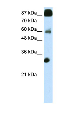 CTCF antibody LS-B1518 Western blot of Transfected 293T cell lysate.  This image was taken for the unconjugated form of this product. Other forms have not been tested.