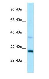 CTDSP1 / SCP1 antibody Western Blot of HepG2.  This image was taken for the unconjugated form of this product. Other forms have not been tested.