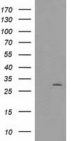CTDSP1 / SCP1 Antibody - HEK293T cells were transfected with the pCMV6-ENTRY control (Left lane) or pCMV6-ENTRY CTDSP1 (Right lane) cDNA for 48 hrs and lysed. Equivalent amounts of cell lysates (5 ug per lane) were separated by SDS-PAGE and immunoblotted with anti-CTDSP1.