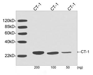 Western blot analysis of human recombinant CT-1 fusion protein using Human CT-1 Antibody (6F7F9), mAb, Mouse The signal was developed with IRDye TM 800 Conjugated Goat Anti-Mouse IgG. Predicted Size: 32 KD Observed Size: 32 KD