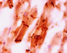 Immunohistochemistry on paraffin section of human heart