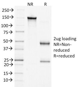 CTNNB1 / Beta Catenin Antibody - SDS-PAGE Analysis of Purified, BSA-Free Beta Catenin Antibody (clone 15B8). Confirmation of Integrity and Purity of the Antibody.