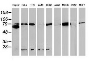 Western blot of extracts (35 ug) from 9 different cell lines by using anti-CTNNB1 monoclonal antibody (HepG2: human; HeLa: human; SVT2: mouse; A549: human; COS7: monkey; Jurkat: human; MDCK: canine; PC12: rat; MCF7: human). Recomended dilution of 1:1000 - 1:2000.