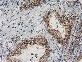 IHC of paraffin-embedded Adenocarcinoma of Human colon tissue using anti-CTNNB1 mouse monoclonal antibody. At a dilution of 1:150.