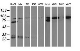 Western blot of extracts (35 ug) from 9 different cell lines by using anti-CTNNB1 monoclonal antibody.