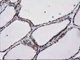 IHC of paraffin-embedded Human thyroid tissue using anti-CTNNB1 mouse monoclonal antibody.