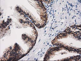 IHC of paraffin-embedded Human prostate tissue using anti-CTNNB1 mouse monoclonal antibody.