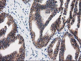 IHC of paraffin-embedded Carcinoma of Human prostate tissue using anti-CTNNB1 mouse monoclonal antibody.
