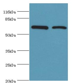 Western blot. All lanes: CTPS1 antibody at 6 ug/ml. Lane 1: HeLa cells Lane 2: 293T cells. Secondary antibody: goat polyclonal to rabbit at 1:10000 dilution. Predicted band size: 67 kDa. Observed band size: 67 kDa.  This image was taken for the unconjugated form of this product. Other forms have not been tested.