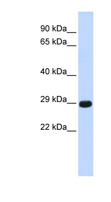CTRB1 antibody LS-C101474 Western blot of Fetal Muscle lysate.  This image was taken for the unconjugated form of this product. Other forms have not been tested.