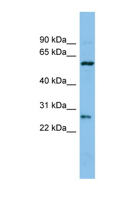 CTRB1 antibody Western blot of COLO205 cell lysate. This image was taken for the unconjugated form of this product. Other forms have not been tested.