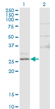 Western Blot analysis of CTRB1 expression in transfected 293T cell line by CTRB1 monoclonal antibody (M02), clone 3C8.Lane 1: CTRB1 transfected lysate (Predicted MW: 27.9 KDa).Lane 2: Non-transfected lysate.