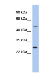 CTRB1 antibody LS-C109832 Western blot of THP-1 cell lysate.  This image was taken for the unconjugated form of this product. Other forms have not been tested.