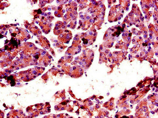 Immunohistochemistry of paraffin-embedded human pancreatic tissue using CSB-PA006182LA01HU at dilution of 1:100