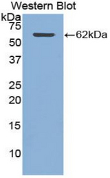 Western blot of recombinant CTSA / Cathepsin A.  This image was taken for the unconjugated form of this product. Other forms have not been tested.