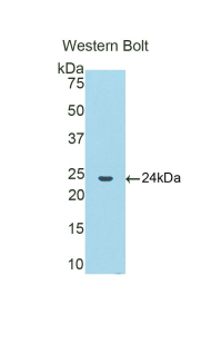 Western blot of recombinant CTSB / Cathepsin B.  This image was taken for the unconjugated form of this product. Other forms have not been tested.